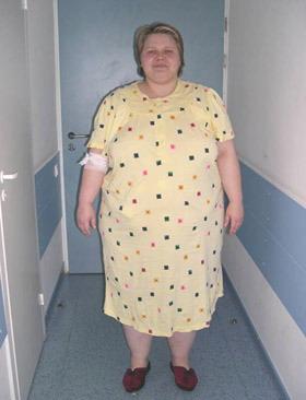 Желудочное шунтирование - До лечения (сентябрь 2005)
