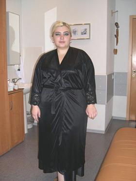 Лапароскопическое желудочное шунтирование - До лечения - ноябрь 2005