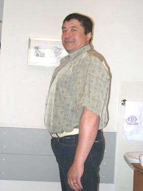 Шунтирование желудка - через 8 мес. после операции