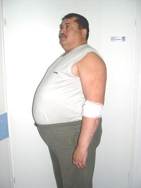 Шунтирование желудка - в день операции