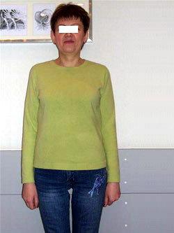 Лапароскопическое бандажирование желудка - 10 мес. после операции
