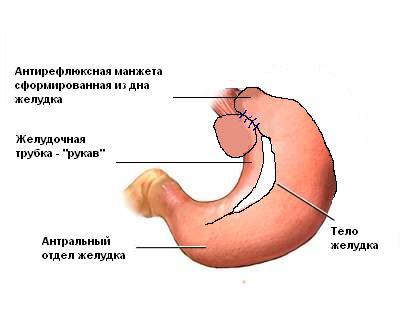 Результат операции - Лапароскопическая модифицированная антирефлюксная гастропластика