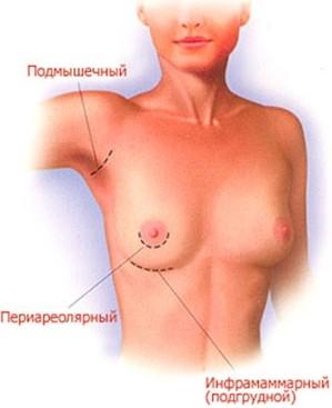 Егорова Мария Владимировна, увеличение груди фото до и после 3. Увеличение груд
