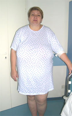 Лапароскопическое желудочное шунтирование - до операции