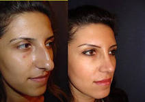 Меган пластика носа