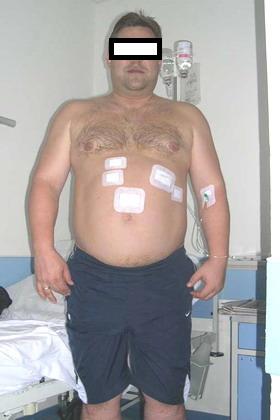 Лапароскопическое бандажирование желудка - август 2006