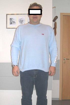 Лапароскопическое бандажирование желудка - декабрь 2006