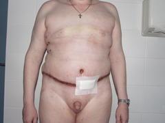ПОДТЯЖКА ЖИВОТА - операция АДБОМИНОПЛАСТИКИ - 3 сутки после операции