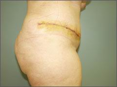 АБДОМИНОПЛАСТИКА -  5-е сутки после абдоминопластики