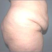 АБДОМИНОПЛАСТИКА - Пациентка с ожирением и опущением передней брюшной стенки
