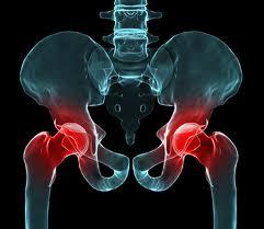 Двустороннее протезирование тазобедренных суставов
