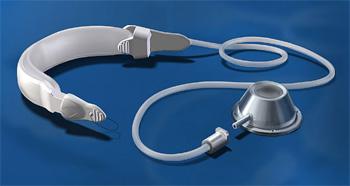 Бандажирование желудка - устройство желудочного бандажа - кольцо - порт - соединительная трубка